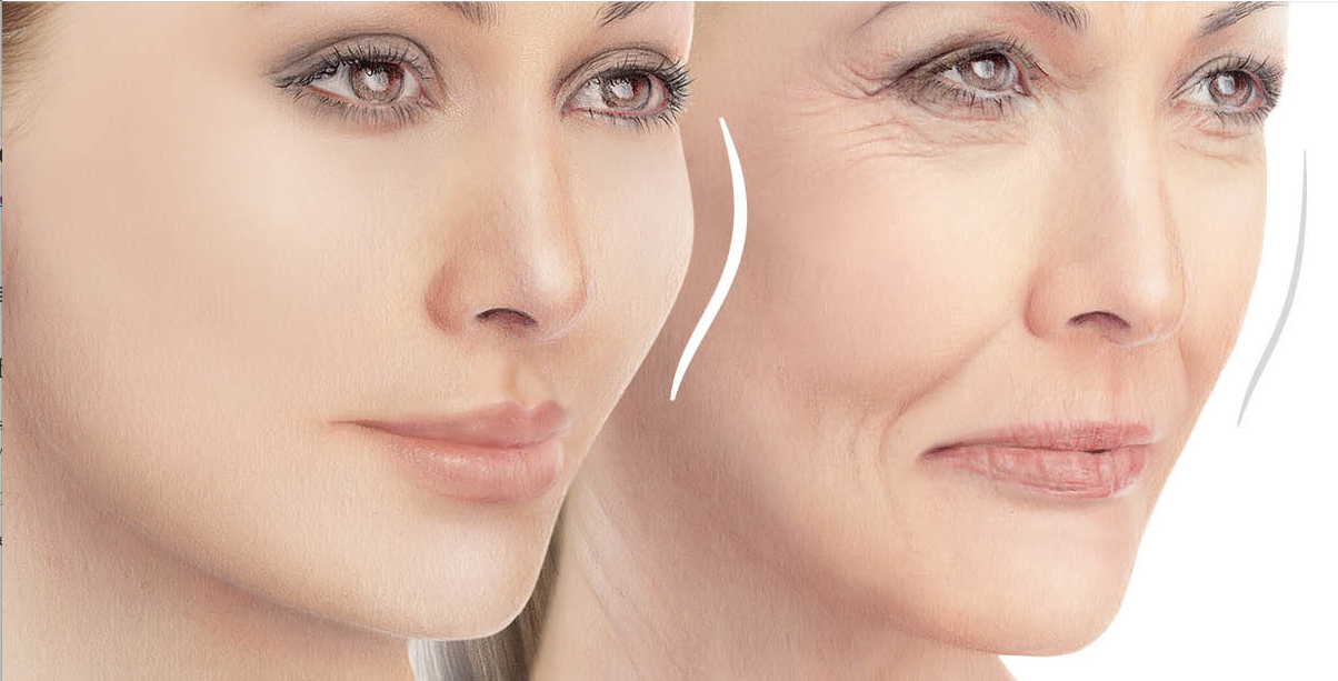 juvederm voluma newport beach