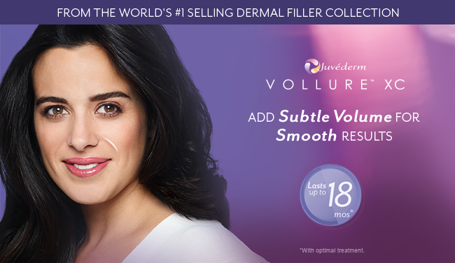 Juvederm Vollure - Newport Beach | Treat parenthesis lines