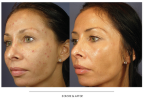 VI Peel before and after photo